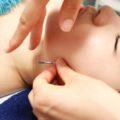 小顔リフトアップ効果に期待!美容と東洋医学の融合「エステ美容鍼」でトータルビューティを目指す